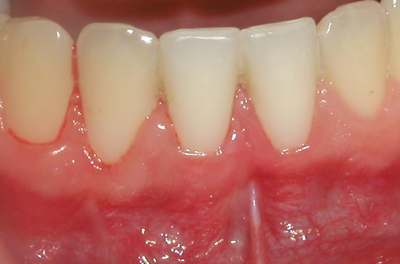 Picture shows the success of a gingival graft.