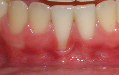 Picture of a mouth that needs a gingival graft