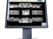 Pictures of digital xrays on a computer screen