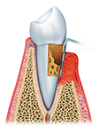 Pic of advanced periodontal disease and receding gums.