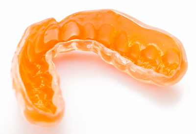 Picture of a mouth guard to prevent teeth grinding.