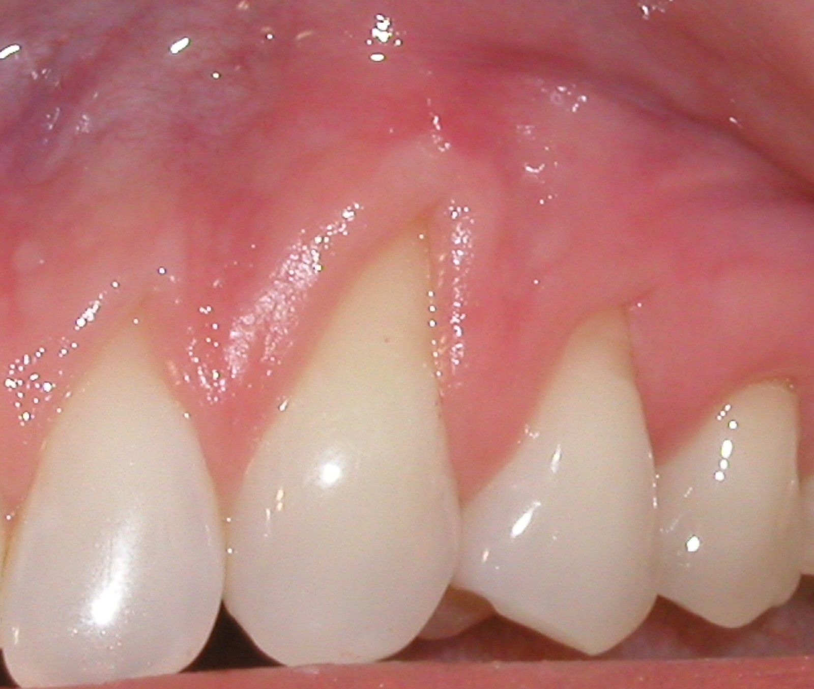 Picture of a mouth that needs a coronal graft