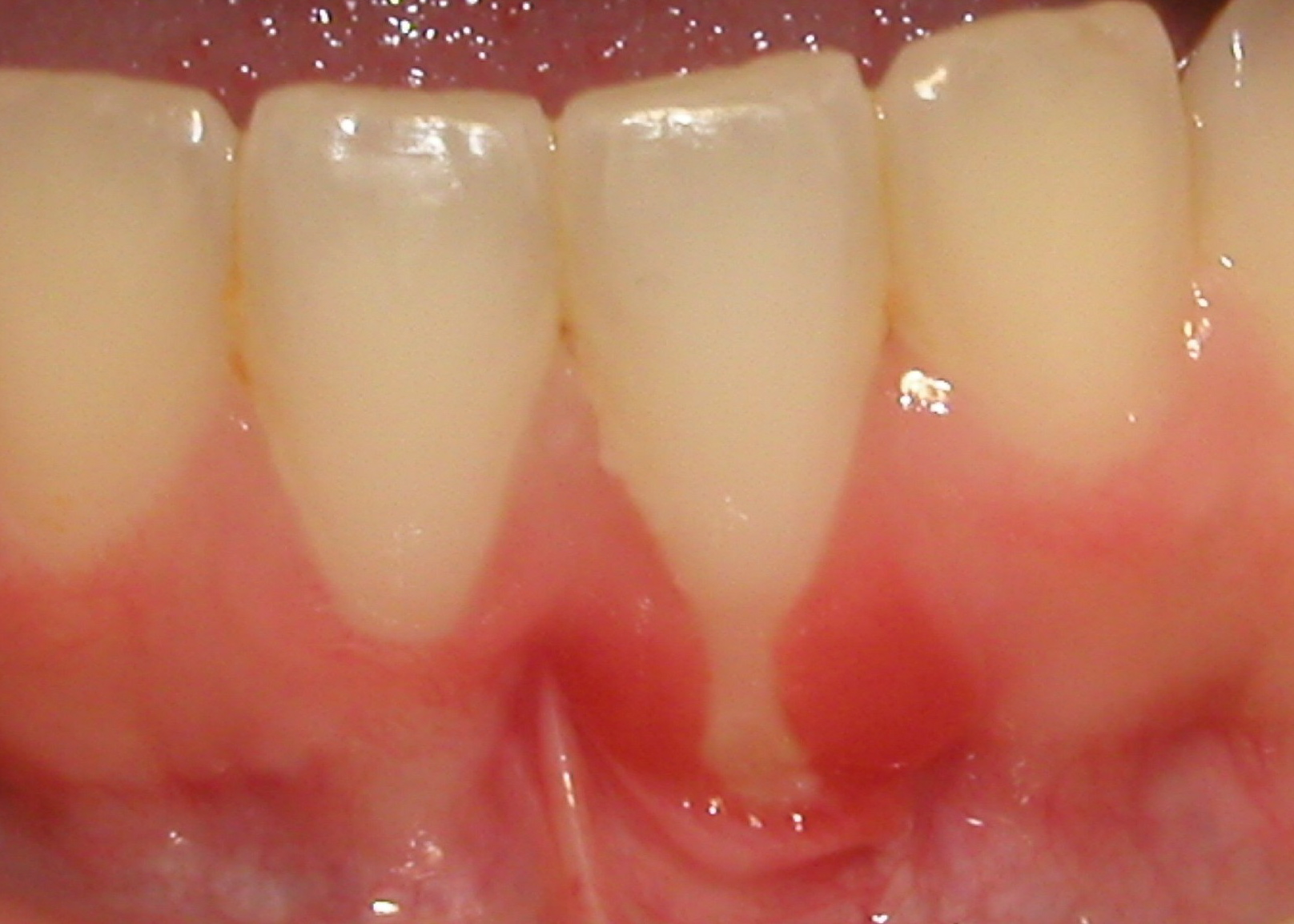 Picture shows gingival recession.