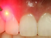 Picture of the LANAP Periolase laser gum surgery being performed on gums