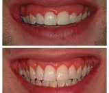 Picture of cosmetic smile enhancement.